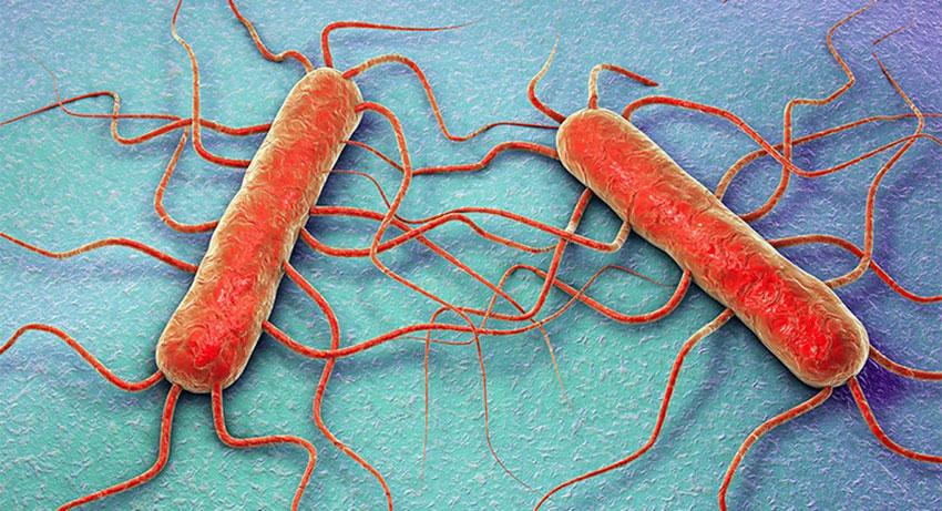 Untersuchung von Listerien in Lebensmitteln - foodaktuell